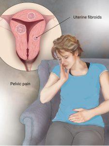 Siddha Medicine For Uterine Fibroids    TKN Siddha Ayurveda