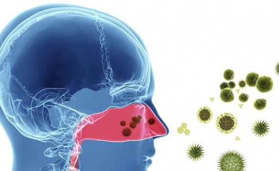 Common cold caused by viral infections